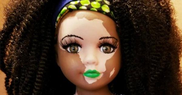African American doll with vitiligo